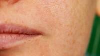 10 Tipps für feinere Poren