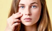 Akne & unreine Haut - 10 Mythen & Vorurteile